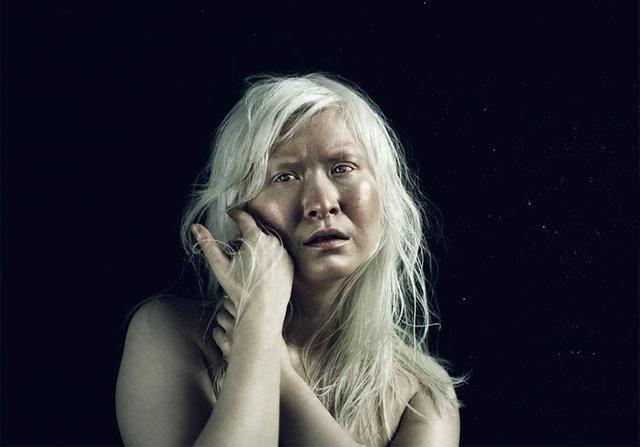 albino-essiz-guzellikleri-2