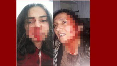 Photo of Annesini ve kız kardeşini hastanelik etti