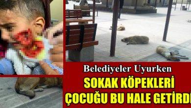 Photo of Suçlu kim? Belediye mi Köpekler mi?