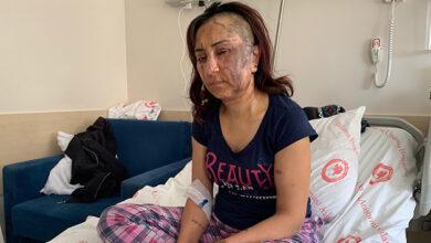 Photo of Boşanmak İsteyen Eşine Kezzapla Saldırdı