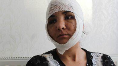 Photo of Kocası yüzünü bıçakla paramparça etti