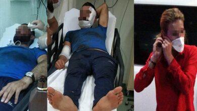 Photo of Kavga Ettiği Kocasını Yüzünden Bıçakladı