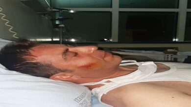 Photo of Zabıta ekiplerine saldırı: 2 yaralı