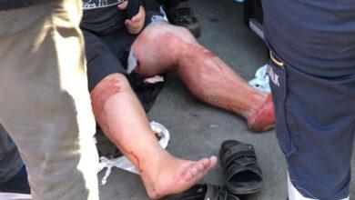 Photo of Sanayi Sitesinde dükkanlara silahlı saldırı: 3 yaralı