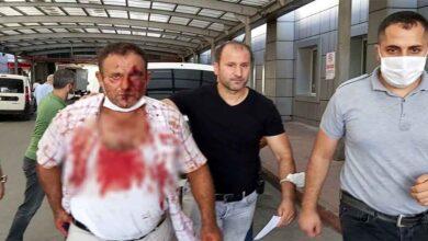 Photo of Pompalı tüfek tutukluk yapınca babasını vuramadı