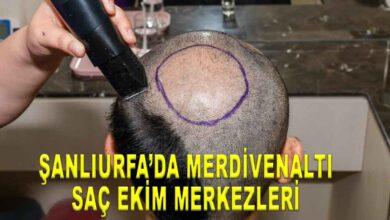 Photo of Şanlıurfa'da merdivenaltı saç ekim merkezleri