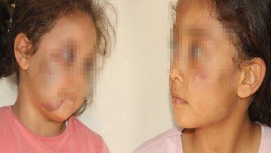 Photo of Urfa'daki O Cani Baba İşkenceden Yargılanacak