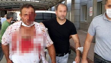 Photo of Salça Kazanı Yüzünden Oğlunu Öldürdü