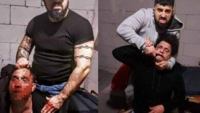 Photo of Eşcinsel Diye Öldüresiye Dövüp Fotoğrafını Yayınladı
