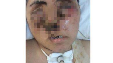 Photo of Eniştesinin saldırısı sonucu ağır yaralandı, yüzü tanınmayacak hale geldi