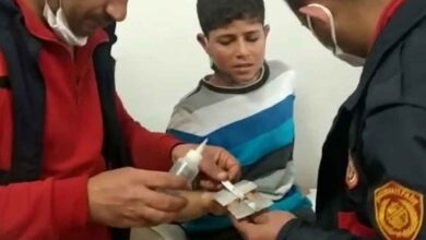 Photo of Şanlıurfa'da Çocuğun parmağına sıkışan yüzük kesilerek çıkartıldı