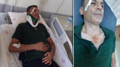 Photo of Urfa'da Sağlık çalışanına darpta 3 gözaltı